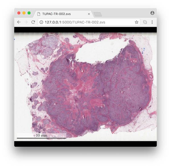 Whole-slide image preprocessing in Python – IBM Developer