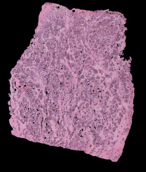 Slide with Large Tissue Sample after Filtering
